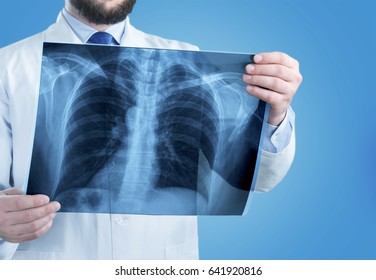 Doctor look x-ray.
