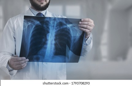 Doctor looking at medical radiological x-ray photograph