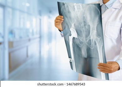 Doctor looking at total hip replacement X-ray film with blurred hospital background.