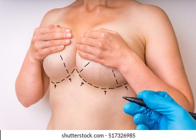 Doctor makes dotted lines on female body for cosmetic surgery or lifting and breast augmentation