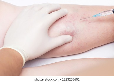 A doctor makes an injection to the varicose veins on a woman's leg