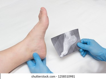 A doctor in medical gloves holds an x-ray of the foot and examines a sore leg with a heel spur on a woman, close-up, osteophytes and heel, fascia