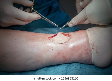 a doctor performs a surgical operation