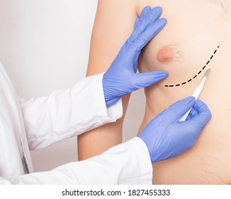 Doctor plastic surgeon with scalpel near male patient's chest. Male Breast and Nipple Reduction Concept, close-up