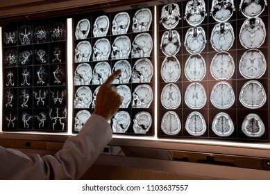 Doctor pointing at MRI of human brain on the light box to demonstrate anatomy