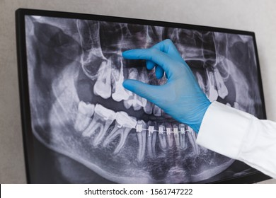 Doctor points to filled root canal in dental x-ray