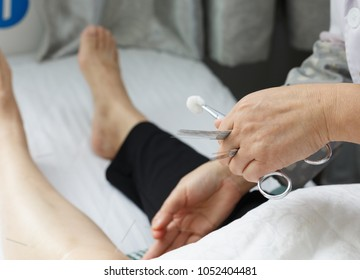 The doctor pricked the patient's leg with acupuncture