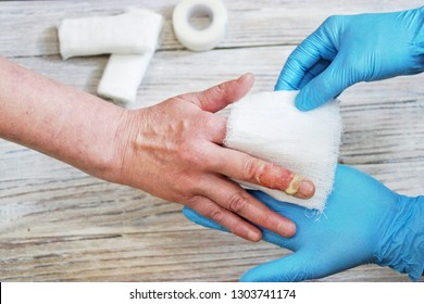 the doctor puts a bandage with the medicine on the burn of the fingers of the woman's hand, an accident at home, careless behavior with boiling water, an injured hand
