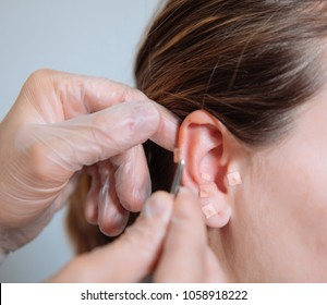 doctor putting acupuncture needles in the ear