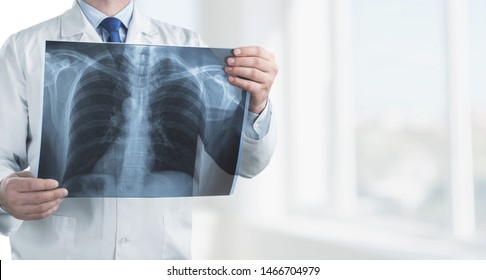 Doctor with radiological chest x-ray film for medical diagnosis on patient health on asthma, lung disease and bone cancer illness, healthcare hospital service concept