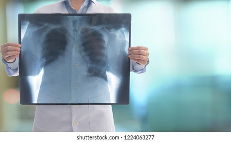 doctor radiology looking chest x-ray film of patient at hospital.