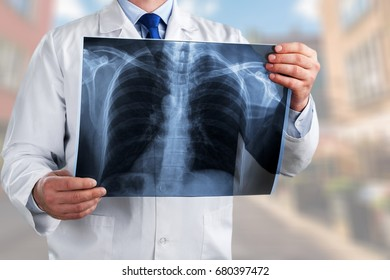 Doctor with scan x-ray.