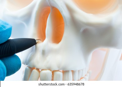Doctor showing patient bone anatomy of skeleton of nose and nasal cavity on skull. Preparing for rhinoplasty surgery, correcting deviated nasal septum, localization of rhinitis, sinusitis in nose