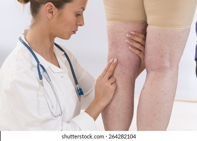 doctor showing varicose veins from an elderly woman