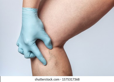 Doctor shows the dilation of small blood vessels of the skin on the leg. Medical inspection and treatment of Telangiectasia.