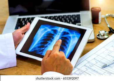 Doctor shows results to patient x-ray