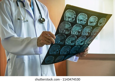 Doctor with stethoscope holding human brain MRI imaging in medical office