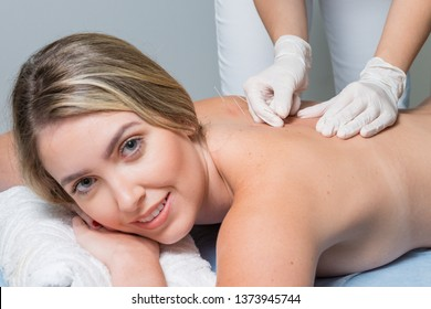 The doctor sticks needles into the blonde girl's body on the acupuncture.