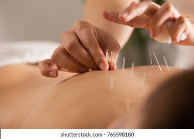 The doctor sticks needles into the girl's body on the acupuncture - close up