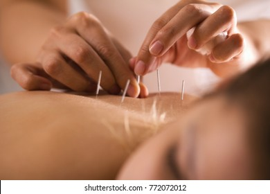 The doctor sticks needles into the girl's body on the acupuncture