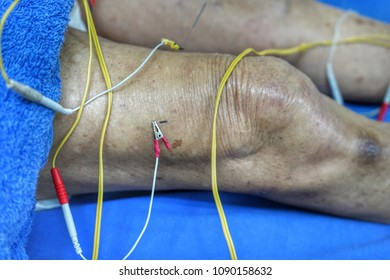 The doctor sticks needles into the old man's body on the electroacupuncture