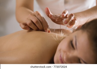 The doctor sticks needles into the woman's body on the acupuncture - close up