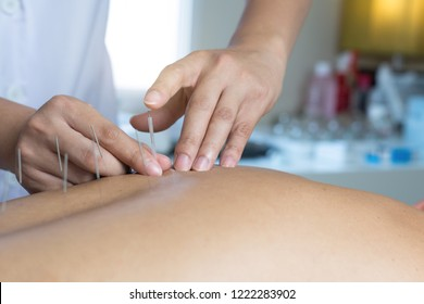 The doctor treats with acupuncture,Traditional Chinese Medicine