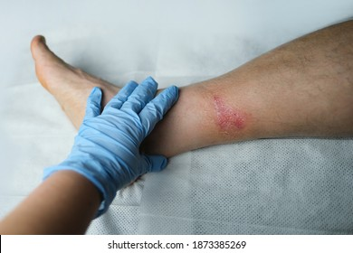 doctor treats a large healing wound from a severe burn on the leg of an adult male patient, redness, scarring of the skin, the concept of medical care, human tissue regeneration