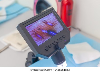 The doctor under the microscope recalculates the hair follicles. Baldness treatment. Hair transplant. Surgical technique that moves hair follicles from a part of the head.