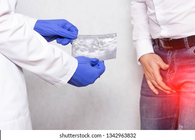 A doctor urologist in medical gloves is holding a picture of an ultrasound of a patient whose varicocele of the spermatic cord, varicose veins
