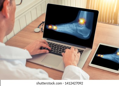 Doctor watching a laptop and digital tablet with x-ray of a foot with pain relief in the ankle and toes