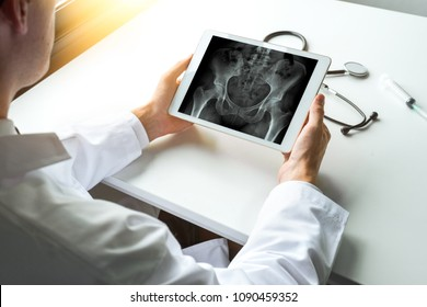 Doctor watching x-ray of hips bones on a digital tablet with light