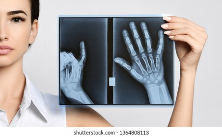 Doctor woman hold hands X-ray examination on gray background