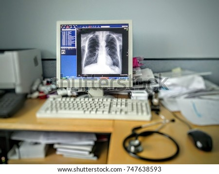 Doctor's desk and computer showing X-ray