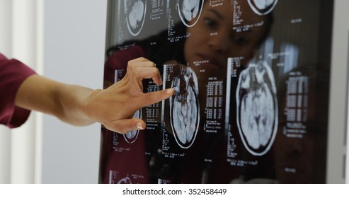 Doctors reviewing brain x-rays