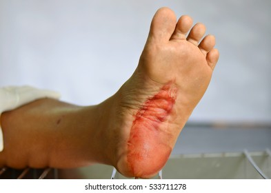 Dog bite and blood on foot.