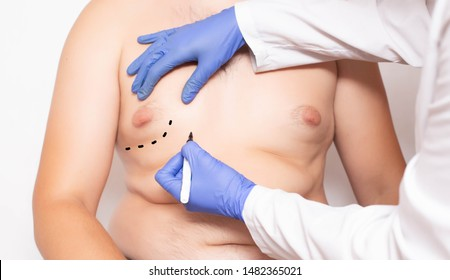 Doktor plastic surgeon preparation before surgery to reduce breasts in men, gynecomastia, lipolysis
