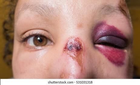 Domestic violence. Sexual victim
