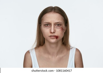Domestic Violence. Woman With Beating On Face