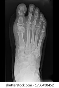 Dorso plantar view of a right side foot showing postoperative anatomy after cheilectomy procedure on the basis of mild hallux valgus / bunion deformity