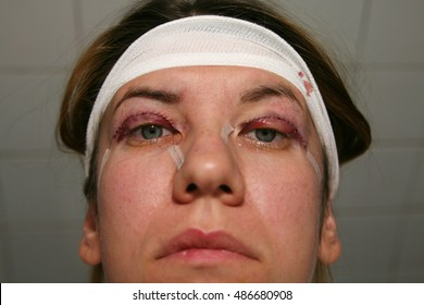 Double Eyelid Surgery Images, Stock Photos & Vectors | Shutterstock