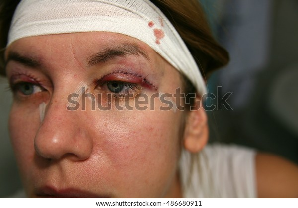 Double Eyelid Surgery Eyes Surgery Recover Stock Photo (Edit