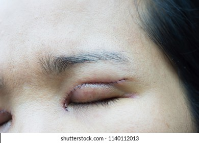 Upper Eyelid Surgery Images, Stock Photos & Vectors