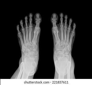 Double Foot X-ray
