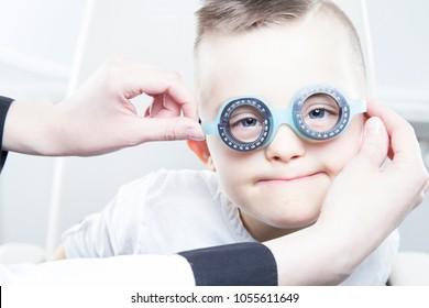 Down syndrome boy. Eye theraphy