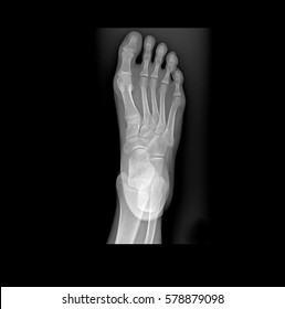 Downward view of Human Left Foot