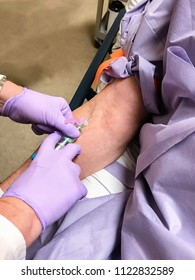 Drawing blood, venipuncture
