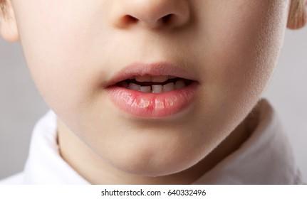 Dried lip skin of 6 years old boy. Closeup