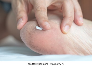 Dry and cracked heels treatment concept. Hand of patient putting on moisturiser lotion or medicine cream to treat broken skin on foot.
