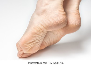 Dry and cracked soles of feet on white background, womans feet with dry heels, cracked skin